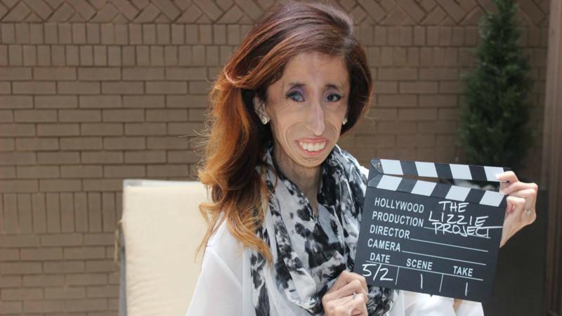 39 lelijkste vrouw ter wereld 39 slaat terug met documentaire nos - Vloerlamp van de wereld ...