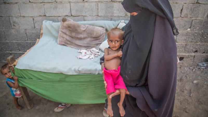 39 kinderen in jemen omgekomen van de honger 39 nos for Arabische havenstad