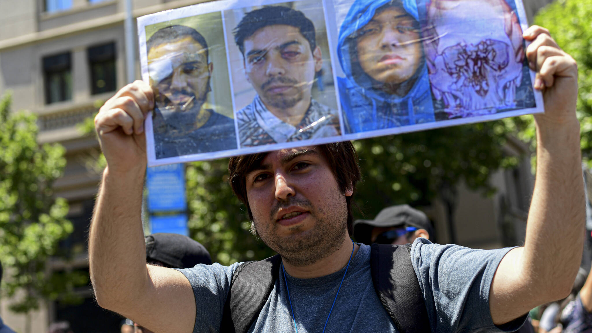 Chilean demonstrator with photos of blinded people, AFP photo